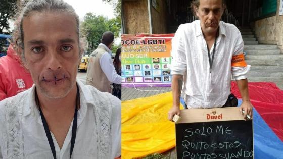 Escultor se cosió la boca y permanece en huelga de hambre en el centro de Bogotá