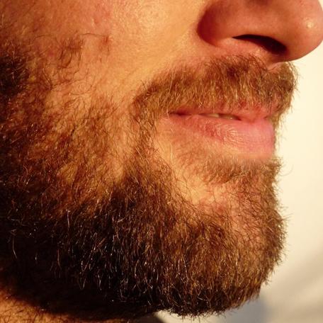 Barba, kienyke