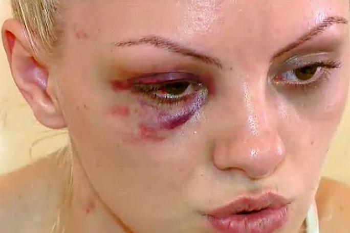 Alexandra Stan, golpeada por su novio, kienyke