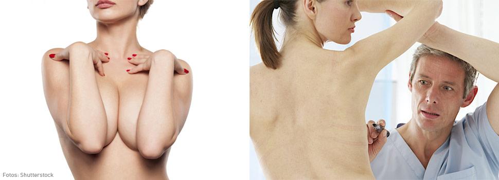 Aumento de senos, Implantes