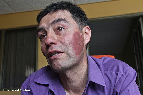 Hombre-quemado-con-acido-5