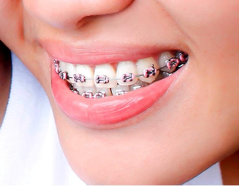 7 mitos y realidades sobre la ortodoncia