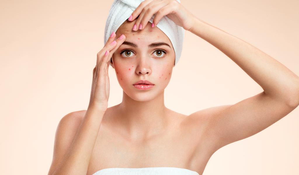 Cinco recomendaciones para tratar el acné en los jóvenes
