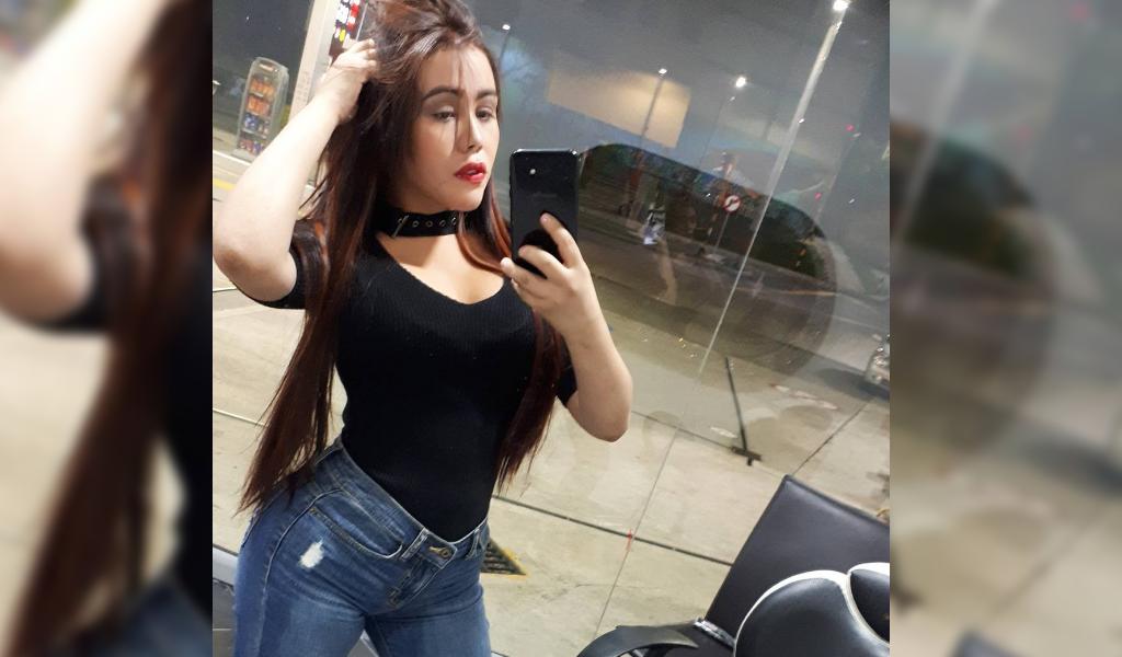 La nueva cirugía que dejó irreconocible a Yina Calderón