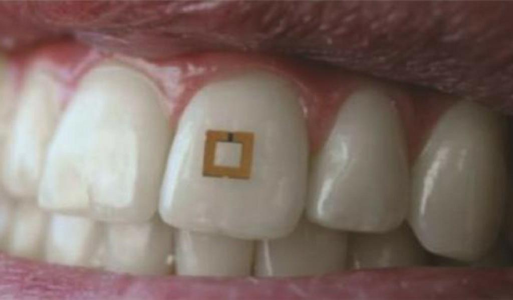El sensor dental que ayudará a controlar las comidas