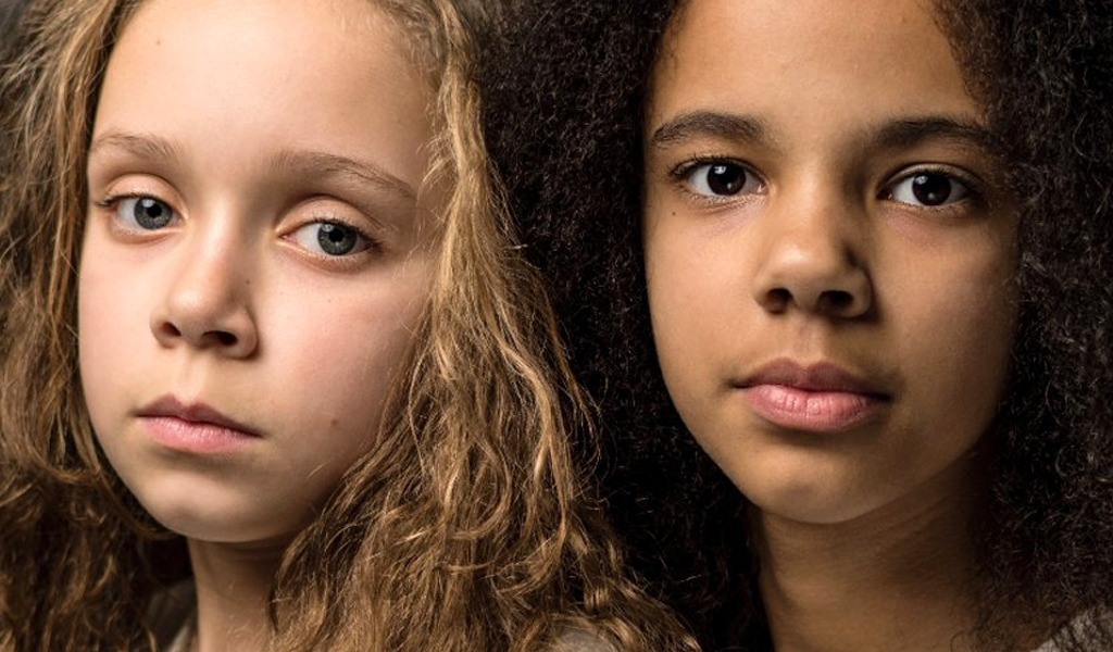 Las gemelas que desafían el racismo