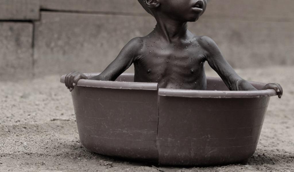 Desnutrición de menores