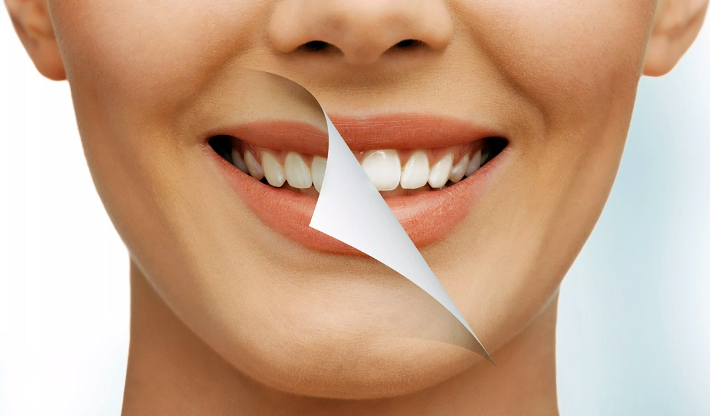 Ventajas y desventajas del blanqueamiento dental