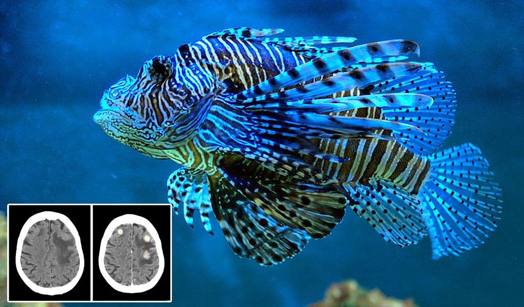 Veneno del pez león serviría como anticancerígeno