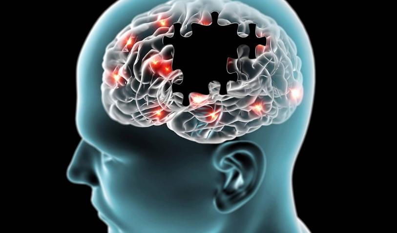 Arritmia cardíaca aumentaría probabilidad de sufrir demencia