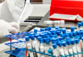 WADA suspendió al laboratorio antidopaje de Moscú