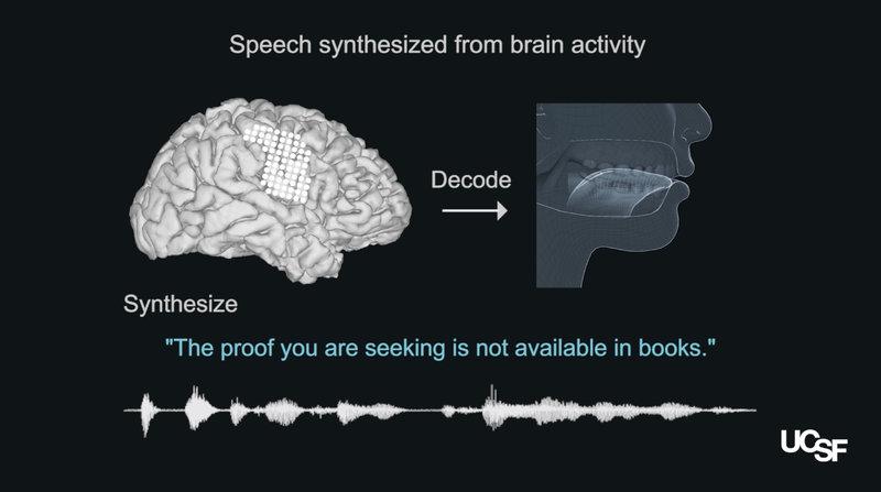 Llegó el cerebro al rescate del habla