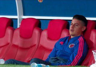 Las causas de las lesiones de James Rodríguez
